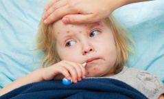 Улаанбурхан өвчин үүсгэх шалтгаан нөхцөл, эмчлэх арга