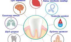 Шүдний өвчлөл хүний эрүүл мэндэд ямар сөрөг нөлөө үзүүлдэг вэ