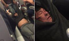 """Бичлэг: """"United Airlines""""-ийн балмад үйлдэл зорчигчдыг цочиролд орууллаа"""
