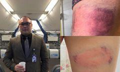 """""""МИАТ""""-ийн хэлтсийн дарга С.Батсүх ажилтанаа бейсболийн төмөр цохиураар зодсон бичлэг цацагдлаа"""