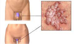 Бэлгийн үү буюу Хүний папиломавирусын халдвар гэж юу вэ?